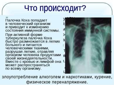 Болезнь развивается лишь у 15% процентов лиц, заразившихся микобактерией тубе...