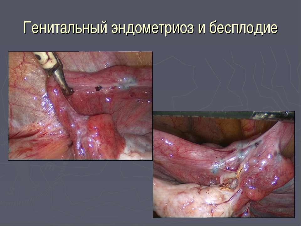 Генитальный эндометриоз и бесплодие