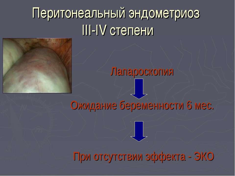 Перитонеальный эндометриоз III-IV степени Лапароскопия Ожидание беременности ...