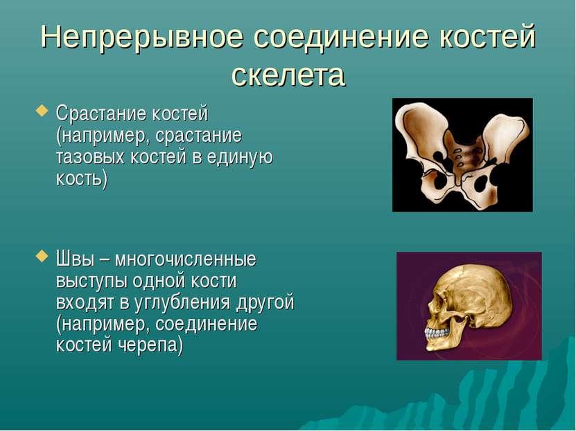 Непрерывное соединение костей скелета Срастание костей (например, срастание т...