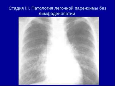 Стадия III. Патология легочной паренхимы без лимфаденопатии