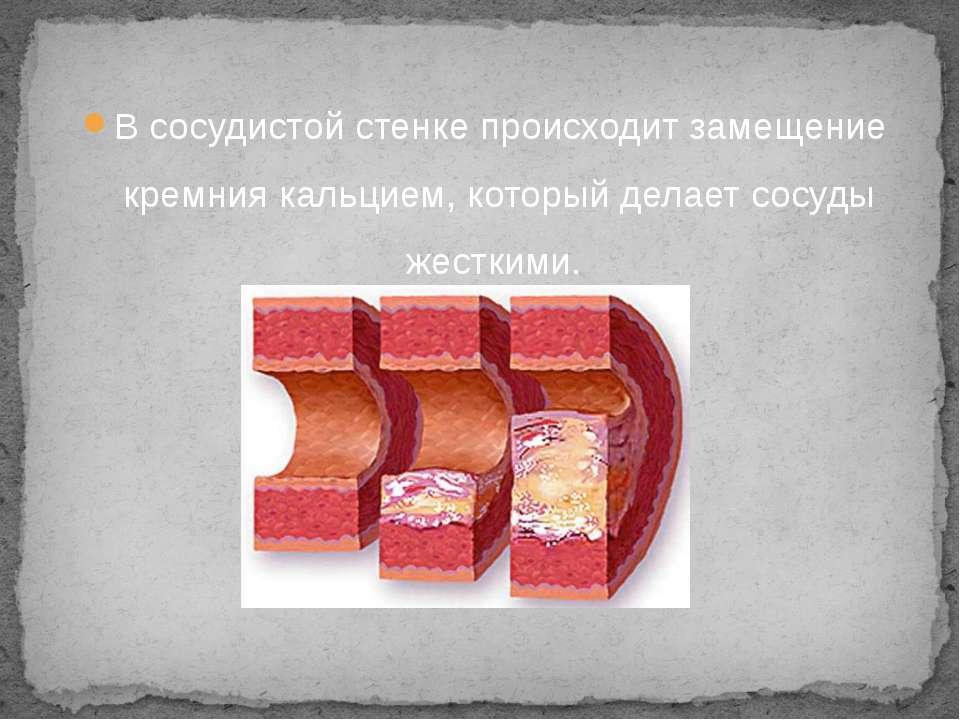 В сосудистой стенке происходит замещение кремния кальцием, который делает сос...