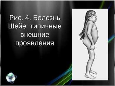 Рис. 4. Болезнь Шейе: типичные внешние проявления