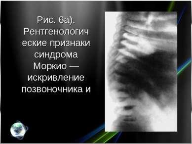 Рис. 6а). Рентгенологические признаки синдрома Моркио— искривление позвоночн...