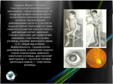 Синдром Моркио-Улльриха. Генетически детерминированное заболевание - мукополи...