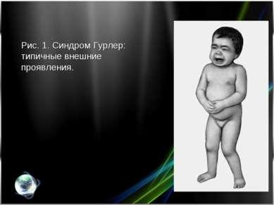 Рис. 1. Синдром Гурлер: типичные внешние проявления.