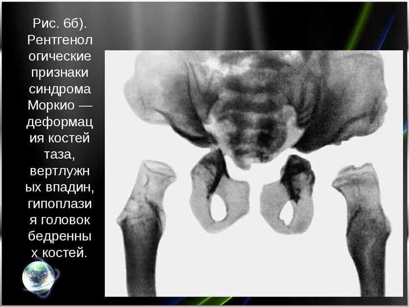 Рис. 6б). Рентгенологические признаки синдрома Моркио— деформация костей таз...