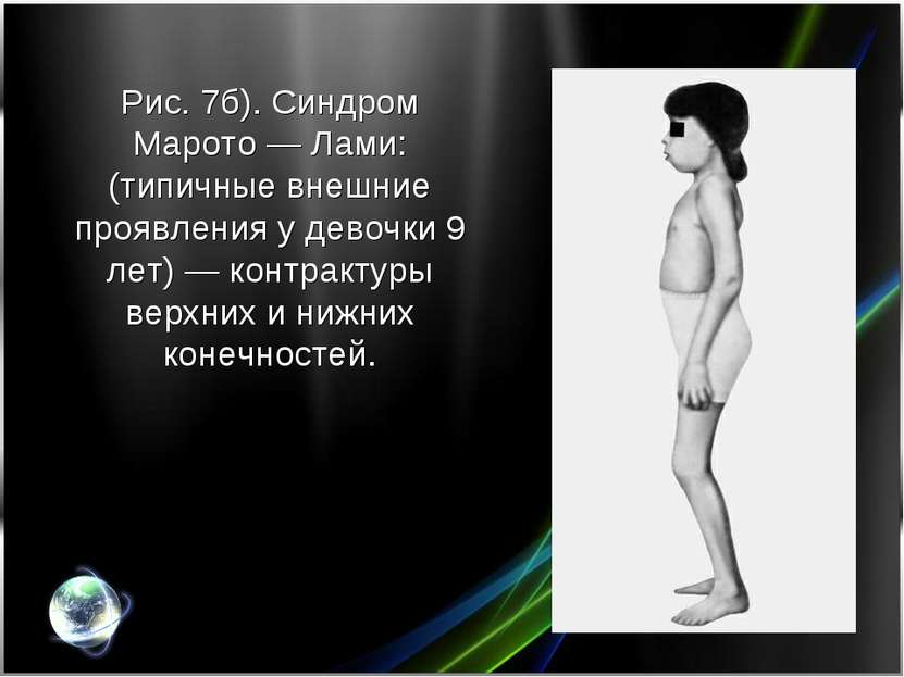 Рис. 7б). Синдром Марото— Лами: (типичные внешние проявления у девочки 9 лет...