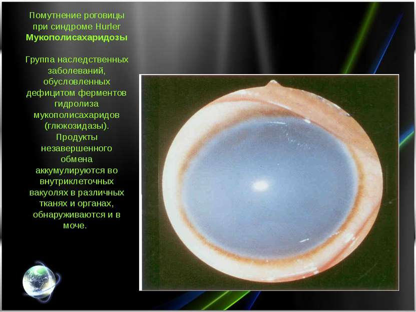 Помутнение роговицы при синдроме Hurler Мукополисахаридозы Группа наследствен...