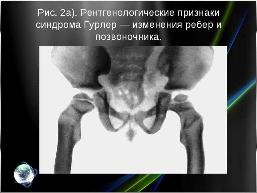 Рис. 2а). Рентгенологические признаки синдрома Гурлер— изменения ребер и поз...