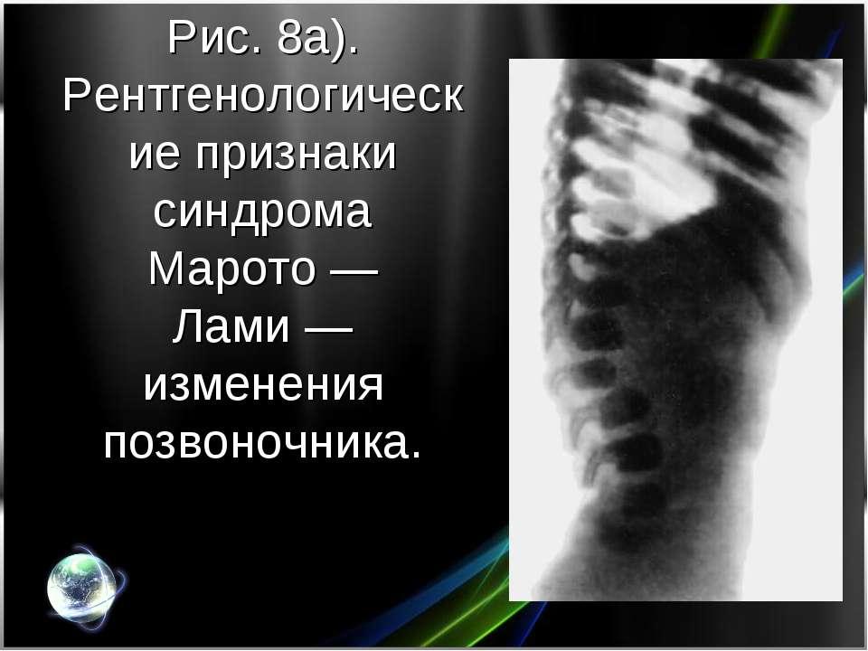 Рис. 8а). Рентгенологические признаки синдрома Марото— Лами— изменения позв...