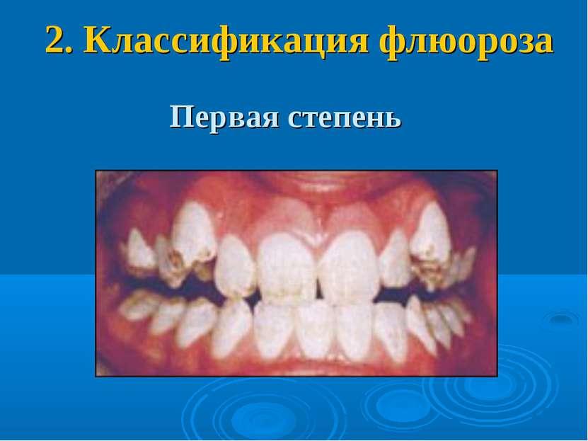 2. Классификация флюороза Первая степень