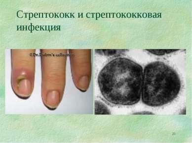 * Стрептококк и стрептококковая инфекция