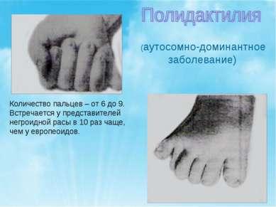 (аутосомно-доминантное заболевание) Количество пальцев – от 6 до 9. Встречает...