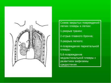 Схема закрытых повреждений легких плевры и легких: 1-разрыв трахеи; 2-отрыв г...