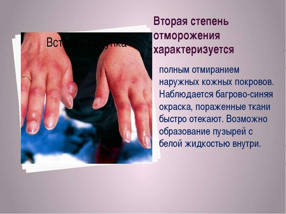 Вторая степень отморожения характеризуется полным отмиранием наружных кожных ...
