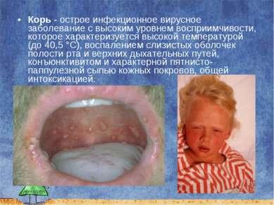Корь - острое инфекционное вирусное заболевание с высоким уровнем восприимчив...