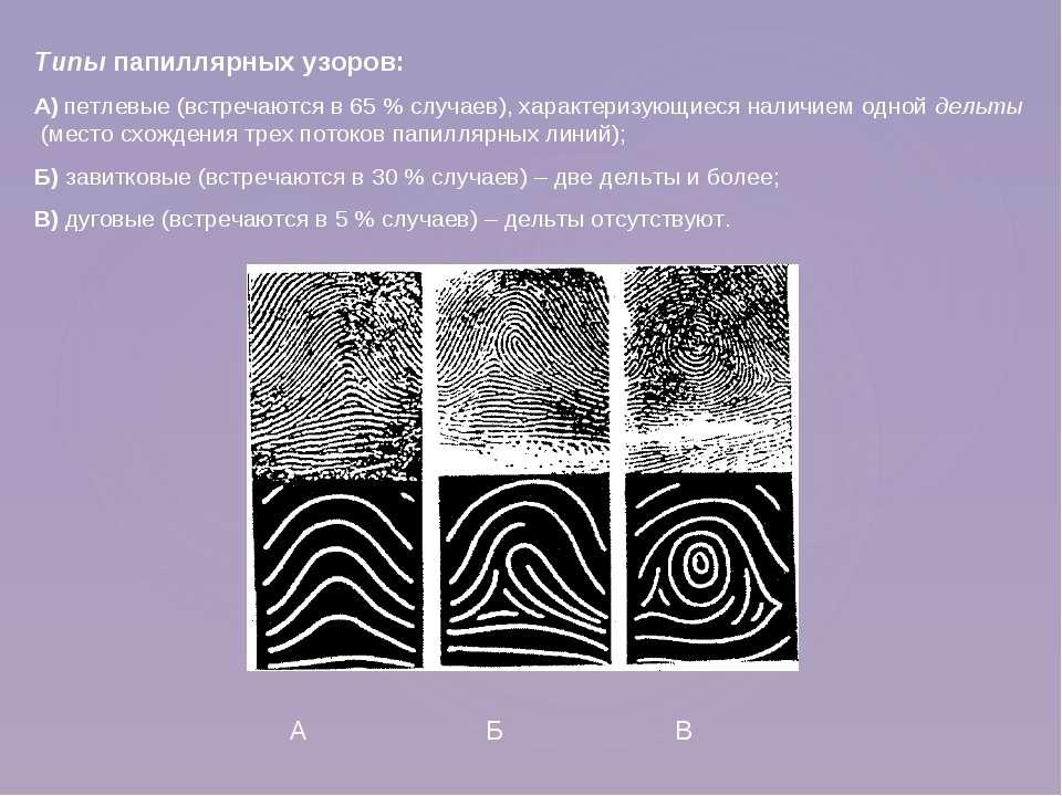 Типы папиллярных узоров: А) петлевые (встречаются в 65 % случаев), характериз...