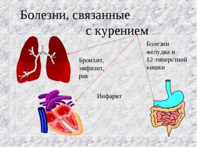 Болезни, связанные с курением Бронхит, эмфизит, рак Инфаркт Болезни желудка и...