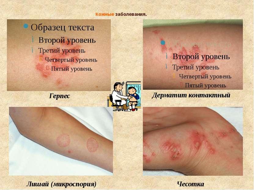 Кожные заболевания. Герпес Дерматит контактный Лишай (микроспория) Чесотка