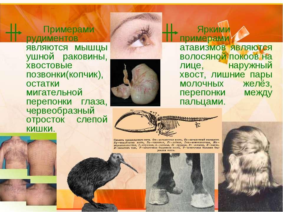 Примерами рудиментов являются мышцы ушной раковины, хвостовые позвонки(копчик...