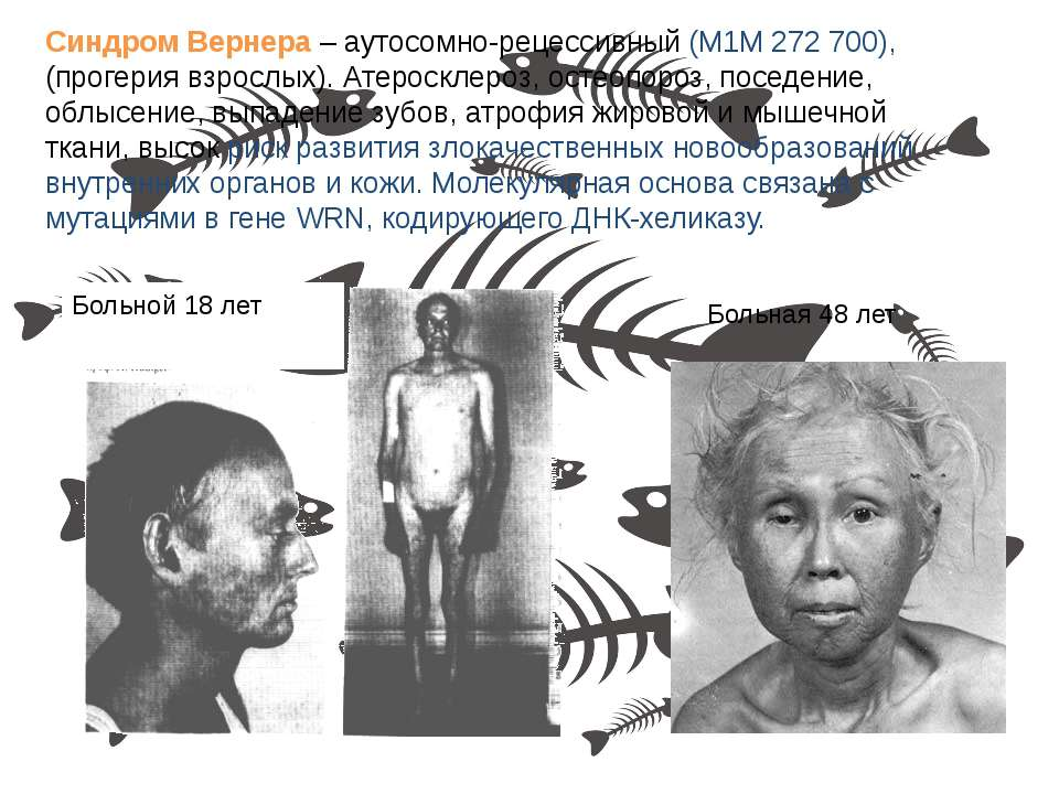 Больной 18 лет Больная 48 лет Синдром Вернера – аутосомно-рецессивный (М1М 27...