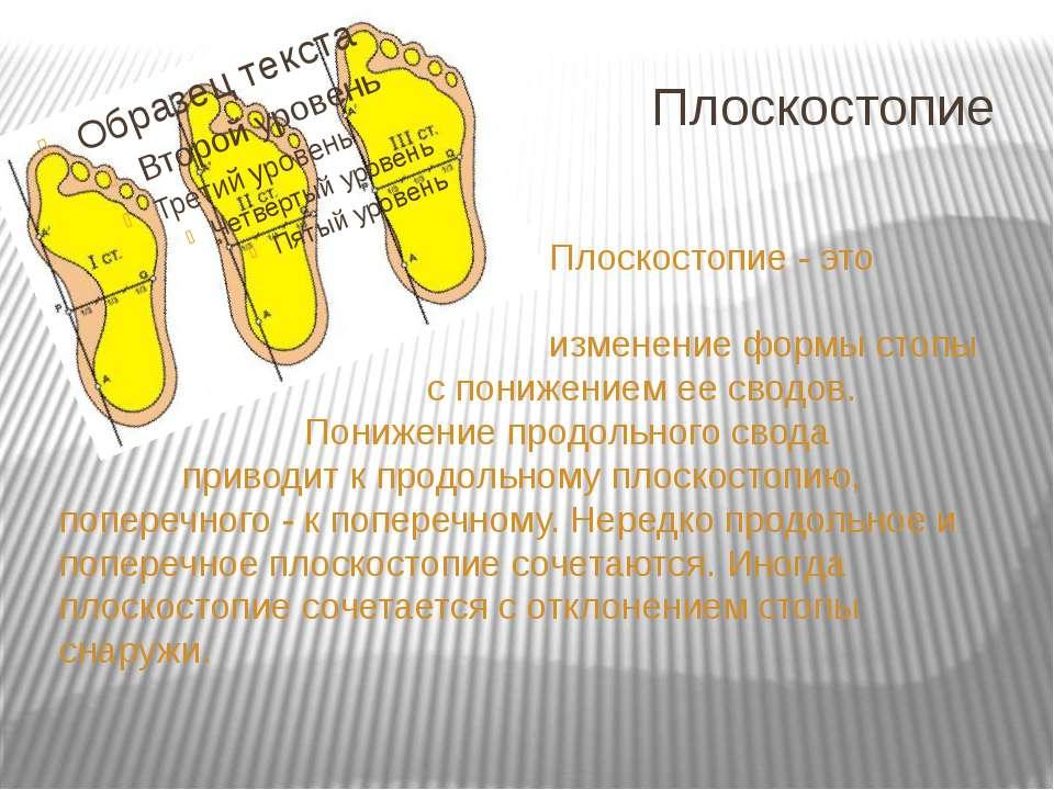 Плоскостопие Плоскостопие - это изменение формы стопы с понижением ее сводов....