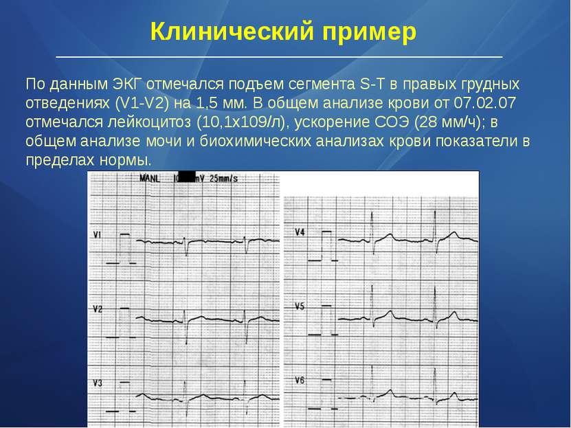 По данным ЭКГ отмечался подъем сегмента S-Т в правых грудных отведениях (V1-V...
