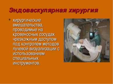 Эндоваскулярная хирургия хирургические вмешательства, проводимые на кровеносн...