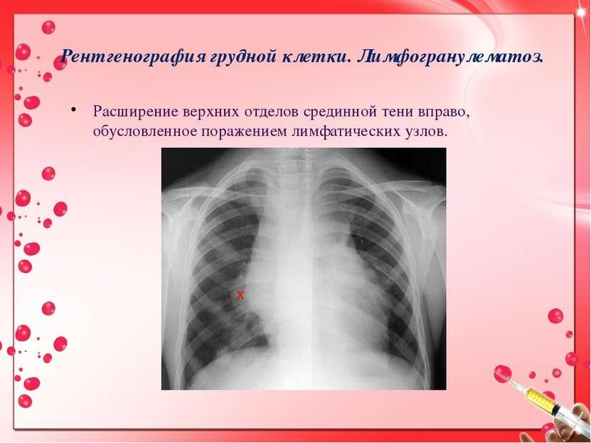 Рентгенография грудной клетки. Лимфогранулематоз. Расширение верхних отделов ...