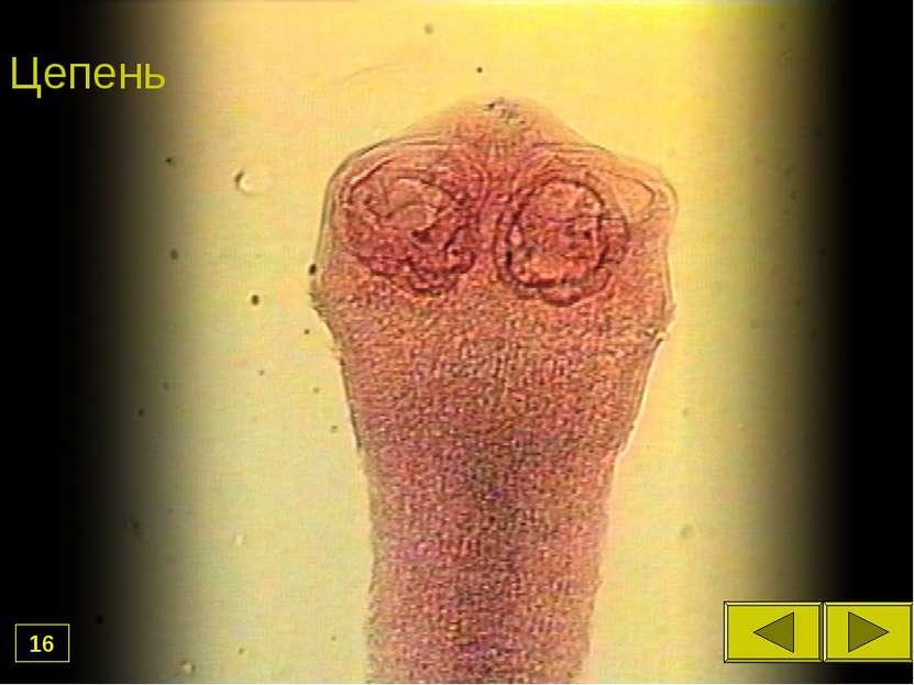 скачать фильм паразиты в организме человека