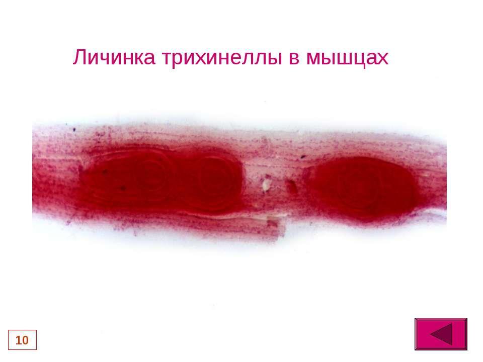 паразиты в мышцах человека лечение