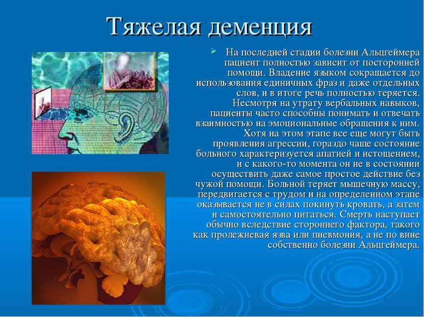 Тяжелая деменция На последней стадии болезни Альцгеймера пациент полностью за...