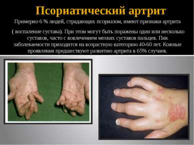 Псориатический артрит Примерно 6 % людей, страдающих псориазом, имеют признак...