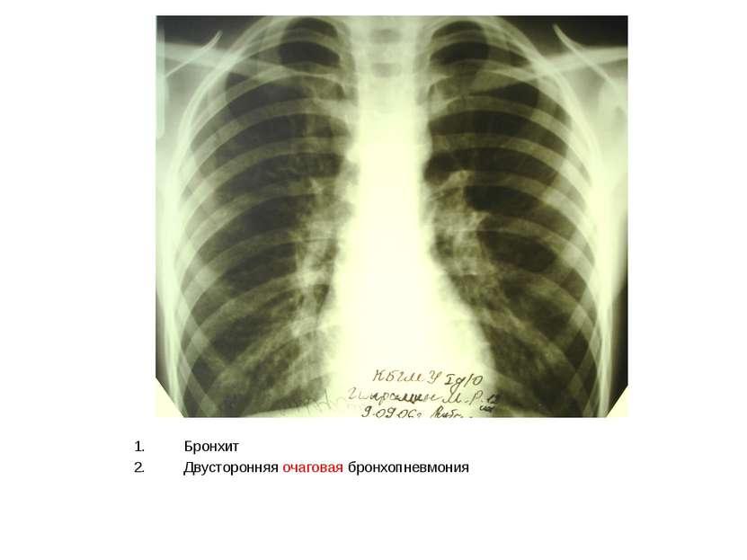 Бронхит Двусторонняя очаговая бронхопневмония