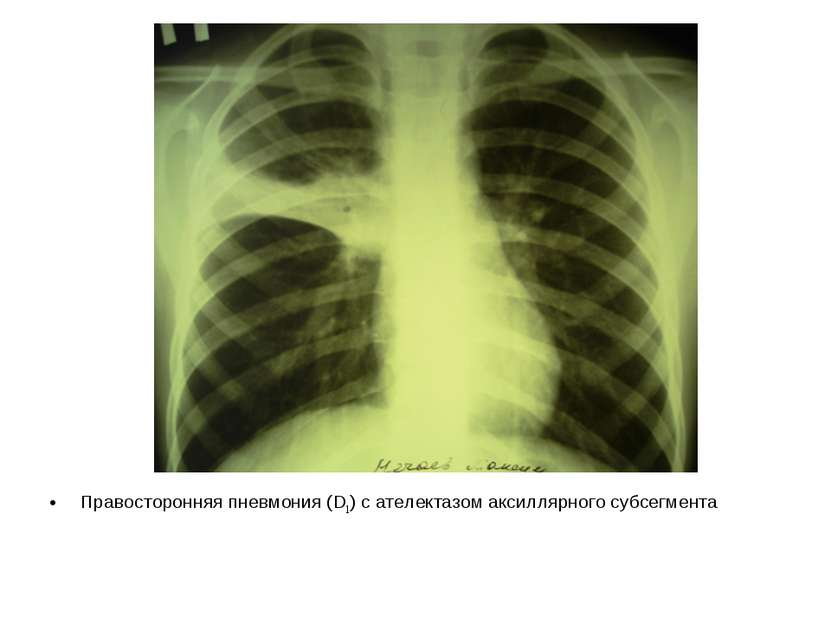 Правосторонняя пневмония (D1) с ателектазом аксиллярного субсегмента
