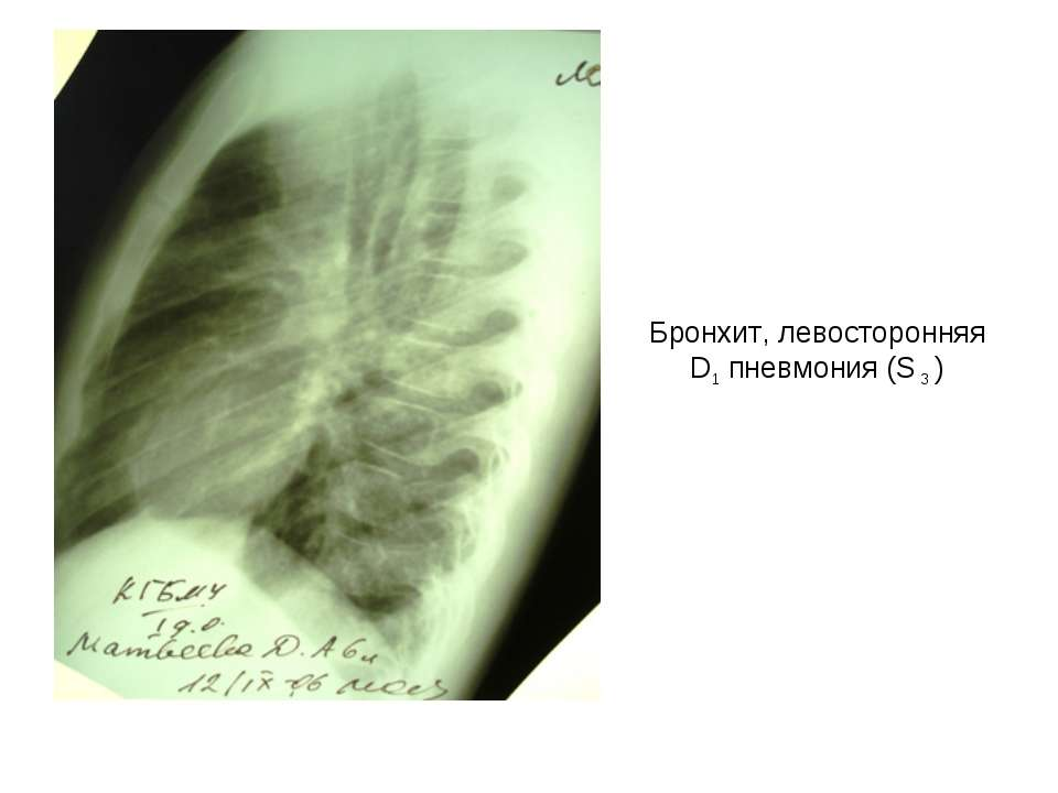 Бронхит, левосторонняя D1 пневмония (S 3 )