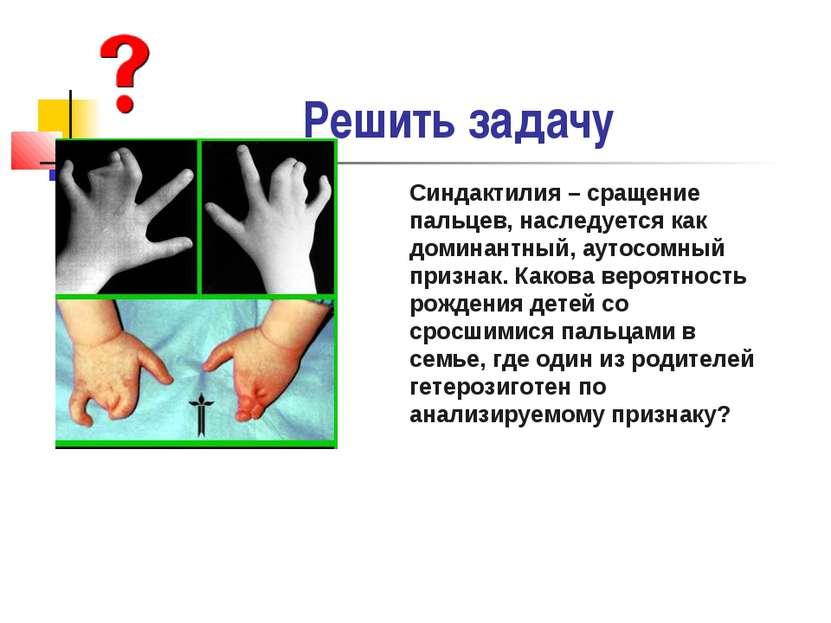 Решить задачу Синдактилия – сращение пальцев, наследуется как доминантный, ау...