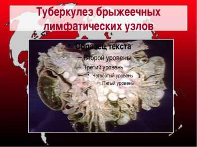Туберкулез брыжеечных лимфатических узлов