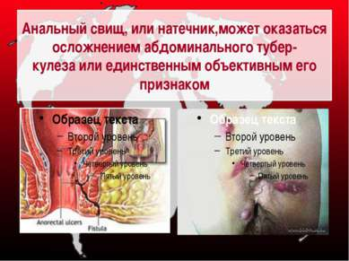 Анальный свищ, или натечник,может оказаться осложнением абдоминального тубер-...