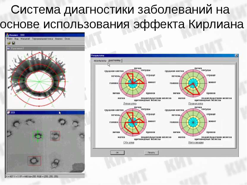 Система диагностики заболеваний на основе использования эффекта Кирлиана