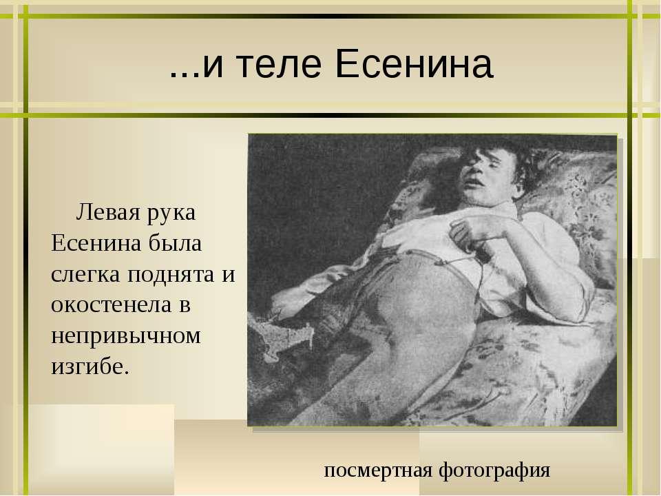 ...и теле Есенина посмертная фотография Левая рука Есенина была слегка поднят...
