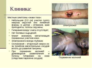 Клиника: Местные симптомы «знаки тока»: Небольшие (2-3 см) участки сухого нек...
