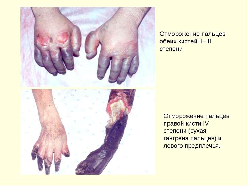 Отморожение пальцев обеих кистей II–III степени Отморожение пальцев правой ки...