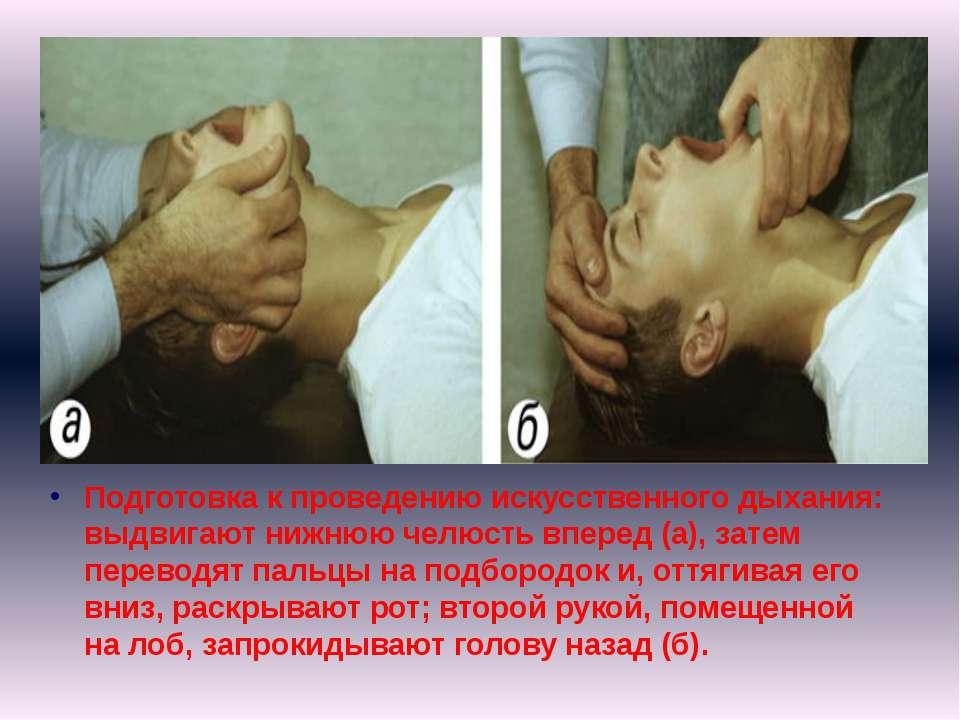 Подготовка к проведению искусственного дыхания: выдвигают нижнюю челюсть впер...