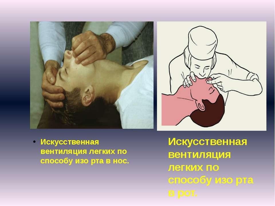 Искусственная вентиляция легких по способу изо рта в нос. Искусственная венти...