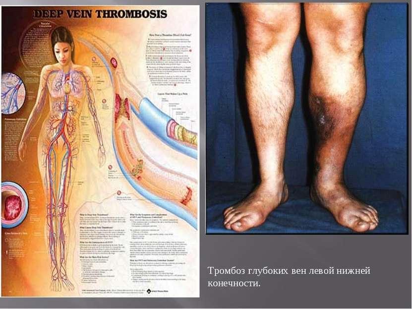 Тромбоз глубоких вен левой нижней конечности.
