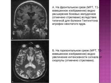 А. На фронтальном срезе (МРТ, Т1-взвешенное изображение) видно расширение бок...
