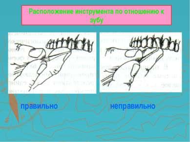 Расположение инструмента по отношению к зубу правильно неправильно