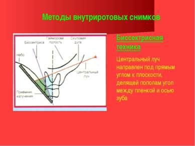 Методы внутриротовых снимков Биссектрисная техника Центральный луч направлен ...